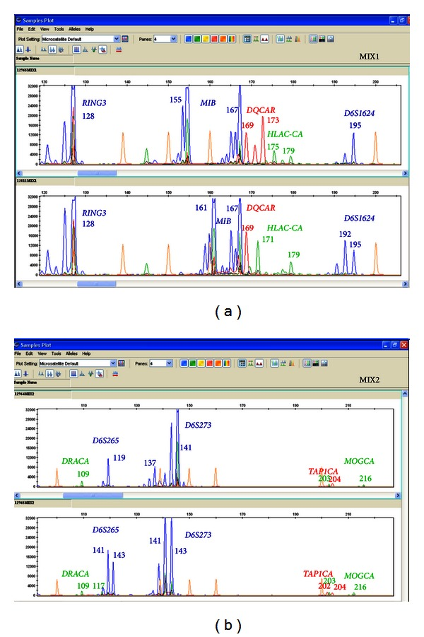 Profiles of 2 different combinations of markers throughout the HLA region after the update of the method on single blastomeres biopsied from nonrelated embryos. Although the efficiency of the PCR varies depending on the marker, the amplification levels obtained for them are adequate to perform the analysis simultaneously. Appropriate zoom of the y -axis of the fluorescence level (proportional to the amplification level), let us to observe and analyze all the peaks, corresponding to the different markers.