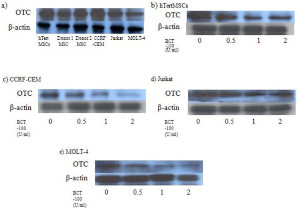 Ornithine transcarbamylase (OTC) is expressed in both hMSCs and T-ALL cells and BCT-10 treatment could suppress OTC expression significant in T-ALL cells but only modestly on MSCs. ( a ) Basal expression of OTC in hTertMSCs, hMSCs from 2 healthy donors, CCRF-CEM, Jurkat and MOLT-4. Cells were harvested and respective proteins were extracted from the corresponding cell lines. SDS-PAGE was performed to separate the proteins. OTC and β-actin (internal control) expression were probed by the corresponding antibodies and then visualized by enzyme coupled luminescence (ECL). ( b ) Expression of OTC in hMSCs after BCT-100 treatment. hTertMSCs or hMSCs from a healthy donor were cultured in different doses of BCT-100 (0 U/ml, 0.5 U/ml, 1 U/ml and 2 U/ml) for 36 hours and protein was extracted from the cell culture. SDS-PAGE followed by Western blotting was performed. The expression of OTC and β-actin (internal control) of hTertMSCs is presented in the figure. ( c ), ( d ) and ( e ) Expression of OTC in CCRF-CEM, Jurkat or MOLT-4 after BCT-100 treatment respectively. CCRF-CEM, Jurkat and MOLT-4 were cultured in different doses of BCT-100 (0 U/ml, 0.5 U/ml, 1 U/ml and 2 U/ml) for 36 hours and protein was extracted. SDS-PAGE followed by Western blotting was performed. The expression of OTC and β-actin (internal control) of CCRF-CEM, Jurkat or MOLT-4 is presented in the figures. The most representative results are presented.