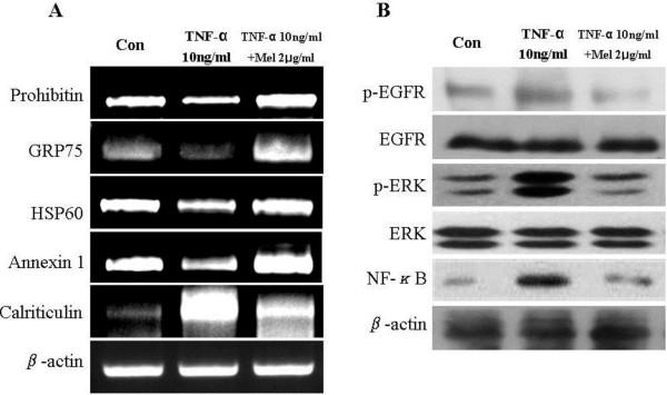 """Validation of the two - dimensional - PAGE data by quantitative RT - PCR and Validation of the protein pathway analysis data. A , expression of selected genes in hVSMCs treated with TNF-α or melittin for 12 h was determined by quantitative RT-PCR. Total RNA was isolated from hVSMCs, reverse transcribed and amplified with the specific primers indicated in under """"materials and methods."""" β-actin was used as the control. B , Total cell lysates (25 μg) and nuclear lysates of hVSMCs treated for 12 h with either TNF-α or melittin were separated by SDS-PAGE. Proteins were blotted onto a PVDF membrane, probed with specific antibodies, and detected as described under """"materials and methods."""""""