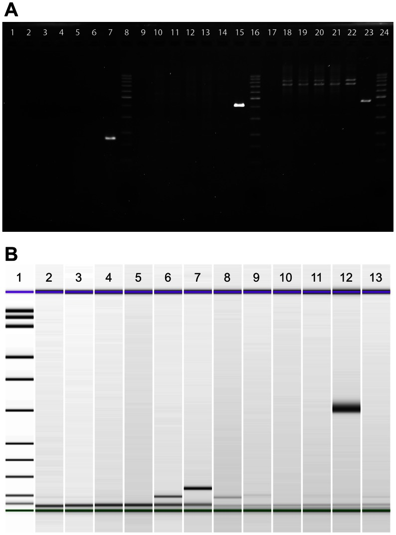 PCR analysis of cell lines and UROtsa stocks to detect large T-antigen. (A) PCR reactions were resolved on a 2% agarose gel. SV40gp6 sequences (5′-, 3′-, and middle part) are absent in UROtsa-1 (lanes 2, 10, 18), UROtsa-3/T24 (lanes 3, 11, 19), UROtsa-4 (lanes 4, 12, 20), HeLa (negative control, lanes 5, 13, 21) and T24 (negative control, lanes 6, 14, 22) but not in BEAS-2B (positive control, lanes 7, 15, 23). No-template controls are in lanes 1, 9, and 17. A 100 bp ladder served as size marker (lanes 8, 16, 24). (B) PCR reactions of reverse-transcribed mRNA were resolved on a microfluidic DNA 1000 chip (Bioanalyzer). Large T-antigen expression (expected product size: 65 bp in lanes 2–7 [24] and 304 bp in lanes 8–13 [23] ) is absent in UROtsa-3/T24 (lanes 3 and 8), UROtsa-4 (lanes 4 and 9), HeLa (negative control, lanes 5 and 10), and T24 (negative control, lanes 6 and 11) but not in BEAS-2B (positive control, lanes 7 and 12). A no-template control was loaded in lanes 2 and 13. Size markers (lane 1) are 15 (green), 25, 50, 100, 150, 200, 300, 400, 500, 700, 850, 1000, and 1500 bp (purple).