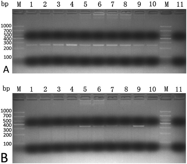 Agarose gel electrophoresis analysis of PCR fragment obtained from human aorta. MMP-12 gene fragments were amplified from human aorta wall by RT-PCR. PCR amplifications were then analyzed by electrophoresis using 1% agarose gel stained with Gelview. The gel was viewed on a Tanon 3500R Gel Documentation System and recorded. ( A ) cDNA corresponding to MMP-12 in human aorta was PCR-amplified using primers for MMP-12. ( B ) cDNA corresponding to GAPDH in human aorta was PCR-amplified using primers for GAPDH. Lanes 1–2: Aorta wall of coronary heart disease patient; Lanes 3–10: AD; Lane M: DNA ladder; Lane 11: negative control.