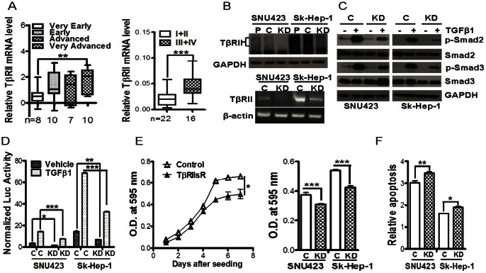 TβRII expression and its role in supporting HCC cell viability. (A) TβRII expression was compared in different stages of HCCs from ONCOMINE (left panel) and in 38 HCC tissue specimens by quantitative real-time RT-PCR (right panel). **, p