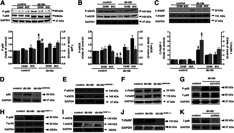 Western blot analysis and quantitative data in homogenized CA from control and type 2 diabetic mice (db − /db − ) treated with or without DHMEQ (DHM) or IKK-NBD (IKK), showing P-p65 and T-p65 ( A ), P-eNOS and T-eNOS ( B ), C-PARP-1 and and T-PARP-1 ( C ), and glyceraldehyde-3-phosphate dehydrogenase (GAPDH). $ P