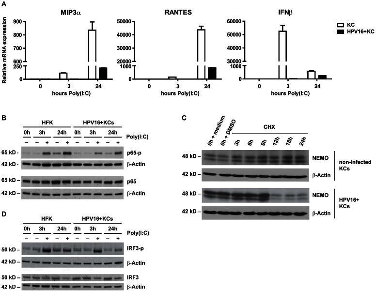 Canonical NF-κB signaling is impaired upstream of the transcription factor p65. ( A ) Poly(I∶C) induced cytokine expression in HPV16+ KCs compared to non-infected KCs. MIP3a , RANTES and IFNβ expression was measured by qRT-PCR. Gene expression was normalized using GAPDH mRNA levels and standardized against 0 h of stimulation with poly(I∶C). ( B ) Poly(I∶C) stimulated phosphorylation levels of p65 in HPV16+ KCs compared to non-infected KCs. Total p65 levels and p65 phosphorylation status were determined in whole cell extracts by western blotting. β-actin served as loading control. ( C ) NEMO degradation in HPV16+ KCs compared to non-infected KCs. Monolayer cultures were treated with 100 µM cycloheximide (CHX) and harvested after 0, 3, 6, 9, 12, 18 and 24 hours. Whole cell extracts were analyzed by western blotting using antibodies against NEMO and β-actin (control for protein degradation). ( D ) Poly(I∶C) stimulation-induced phosphorylation levels of IRF3 in hrHPV+ KCs compared to KCs. Total IRF3 levels and IRF3 phosphorylation status were determined in whole cell extracts by western blotting. β-actin served as loading control.