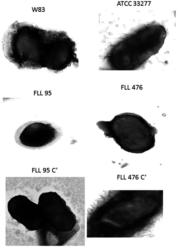 Electron micrograph showing changes in surface structures of P. gingivalis ATCC 33277 and W83. Bacterial cells grown to the log phase (OD 600 of 0.7–0.9) were processed for electron microscopic examination using formvar-carbon coated grids (500 mesh) and were examined using Philips Tecnai 12 TEM. Fimbriae were lacking in the vimF mutant FLL476 when compared with the wild ATCC33277 and the complemented strain FLL476C'. A thick glycocalyx along with vesicles and a well-defined outer membrane was observed in W83. FLL95 showed hazy outer membrane with reduced visicles. In the complemented strain FLL95C' the outer membrane morphology was restored.