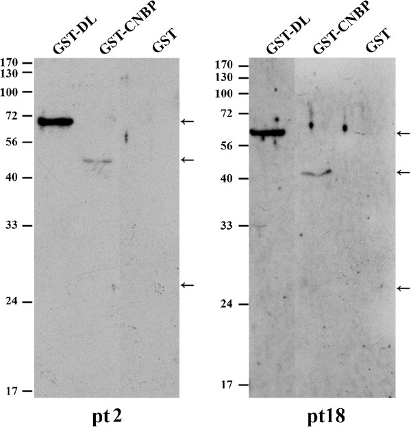 Recognition of hnRNP DL and CNBP by anti-Sm positive SLE patient sera. GST-fused hnRNP DL and CNBP were prepared as described in Methods. The GST-fused proteins or GST were applied to SDS-PAGE and the immunoblots detected by the autosera from patient (pt) 2 and 18 are shown.