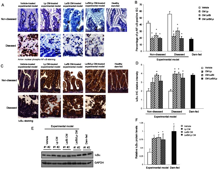 "CM from L. plantarum , L. acidophilus , and B. infantis suppressed NF-κB signaling and preserved IκBα expression. Intestines from healthy dam-fed controls and experimental intestinal injury pups treated with vehicle or different CM were IHC stained for the active/phosphorylated form of NF-κB p65 (p-NF-κB) and IκBα or lysed for immunoblotting for IκBα. A. Representative IHC staining (at 400×) shows that CM decreased IEC NF-κB activity/nuclear p-NF-κB (arrows) in experimental pups with or without intestinal injury (n = 3 per group). B. NF-κB activity from A. was quantified by percentage of nuclear p-NF-κB-positive IEC in three fields of each intestinal section (n = 3). C. Representative IHC staining shows La/Bi CM and all CM protection of IEC IκBα expression in experimental pups with or without intestinal injury, respectively, (n = 3 per group). D. IHC intensity of IκBα from C. was scored on a 0–4 scale to relatively quantify levels of IκBα. E. Immunoblotting shows CM protection of IEC IκBα expression in experimental pups. Intestines of vehicle- and CM-treated experimental pups with disease and healthy dam-fed pups were lysed and subjected to IκBα immunoblotting. IκBα protein levels were quantified by densitometry using ImageJ software and normalized to GAPDH and presented in F. Results are presented as mean of percentages, scores, or relative density ± SE. ""*"" depicts p"