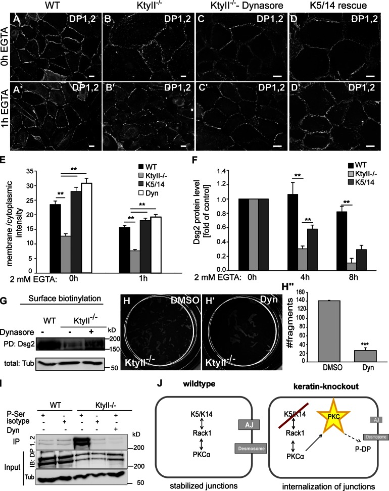 Keratins affect dynamin-dependent endocytosis. (A–D′) DP staining revealed almost complete desmosome internalization in KtyII −/− cells after EGTA treatment (B′), whereas internalization is slower in controls (A′). Blocking endocytosis or reexpression of K5/14 in KtyII −/− cells induced relocalization of junctional proteins to PM in high Ca 2+ conditions (C and D) as well as 1 h after EGTA incubation (C′ and D′). (E) Ratios of average pixel intensities for DP at PM and cytosol ( n = 50). (F) WB of total protein lysates after EGTA treatment demonstrated accelerated Dsg2 degradation in KtyII −/− cells, reverted by reexpression of K5/14. Data (mean ± SEM, n = 3) are fold change relative to control. (G) Surface biotinylation and WB showed increased surface localization of Dsg2 after Dynasore treatment in KtyII −/− cells. The first two control lanes (WT and KtyII −/− with no drug treatment) are the same as shown in Fig. 3 H because the treated samples were loaded on the same blot. (H–H′′) Blocking endocytosis in KtyII −/− cells restored mechanical strength after dispase treatment ( n = 3). (I) IP with pSer antibodies followed by WB: reduction of P-DP in KtyII −/− cells after Dynasore treatment ( n = 2). (J) Model suggesting keratins regulate PKC-α–mediated phosphorylation of DP via RACK1.