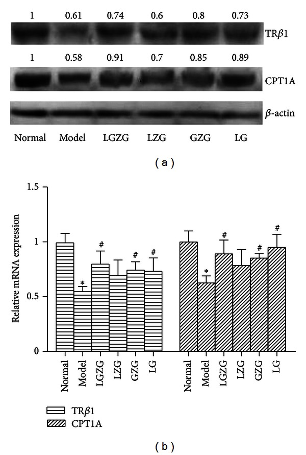 LGZG improved fatty acid beta-oxidation via regulation of TR β 1 and CPT1A expression. The relative mRNA and protein expression of TR β 1 and CPT1A were detected by real-time PCR and western blot. (a) The influence of LGZG and its decomposed recipes on the protein expression of hepatic TR β 1 and CPT1A; (b) the influence of LGZG and its decomposed recipes on the relative mRNA of hepatic TR β 1 and CPT1A (normalized by β -actin). * P