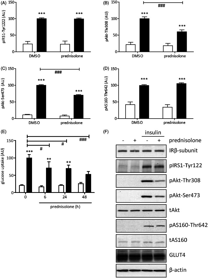 Effect of prednisolone on insulin action in 3T3-L1 adipocyte cells. Effects on protein expression of the insulin receptor (IR) β-subunit, Akt, AS160, and GLUT4, as well as the phosphorylation of insulin receptor substrate 1 (IRS1-Tyr1222), Akt-Thr308, Akt-Ser473, and AS160-Thr642 were determined by Western blotting in cells exposed to 1 μM prednisolone for 48 h prior to stimulation with insulin (10 min, 100 nM). Data are presented as mean ± standard error of the mean of > 4 independent experiments (A–D), and representative Western blots (F). E. Effect of prednisolone on 2-deoxyglucose uptake in in 3T3-L1 adipocytes after 6, 24 and 48 h of incubation with prednisolone. Data are mean ± standard error of the mean of > 4 independent experiments. In all bar graphs, open columns represent the basal condition, and filled bars depict insulin-stimulated cells. The effects of prednisolone on insulin action were analysed using a two-way ANOVA followed by Bonferonni analysis for multiple comparisons. ***Indicates a p