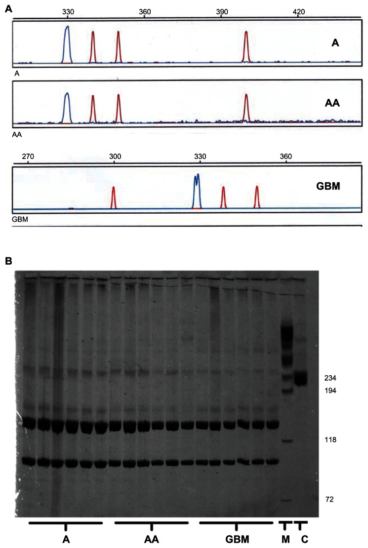 Absence of activating Flt3 mutations in astrocytic gliomas. ( A ) Examples of GeneScan analyses of 6-FAM-labeled polymerase chain reaction fragments spanning the Flt3 region, in which internal tandem duplications can occur. The tumor samples analyzed show the wild-type peak at a mean fragment length of 330.07 ± 0.37 bp. No sample contained additional peaks around 400 bp or of any size compatible with internal tandem duplications up to a size of 500 bp. The double peak in the GBM sample merely reflects an overlap between two peaks with a distance of 0.85 bp, which can be interpreted as a polymerase chain reaction artifact. ( B ) Diffuse astrocytomas (A), anaplastic astrocytomas (AA), and glioblastomas (GBM) were screened for the D835 point mutation. Notes: An undigested product of the polymerase chain reaction (237 bp) served as a control (C) to indicate the expected fragment size and intensity in the event of a mutation. It comigrated with the indicated 234 bp fragment of the marker (M). It can be seen clearly that no tumor DNA contained a major fragment comigrating with the control, while two smaller fragments of identical size were observed in all tumor samples. Faint bands of higher molecular weight became visible by the highly sensitive silver stain. These bands most likely reflect annealing artifacts of the primers, given that the electrophoretic mobility was lower than that of the control. Alternatively, these fragments may represent traces of undigested DNA due to incomplete digestion of wild-type DNA by EcoRV. They do not indicate a heterozygous state (mutant and wild-type) of tumor cells, because 50% of mutated tumor DNA would have yielded band intensities similar to that observed in lane C. Abbreviations: GBM, glioblastoma multiforme; Flt3, fms-like tyrosine kinase-3; Flt3L, fms-like tyrosine kinase-3 ligand.