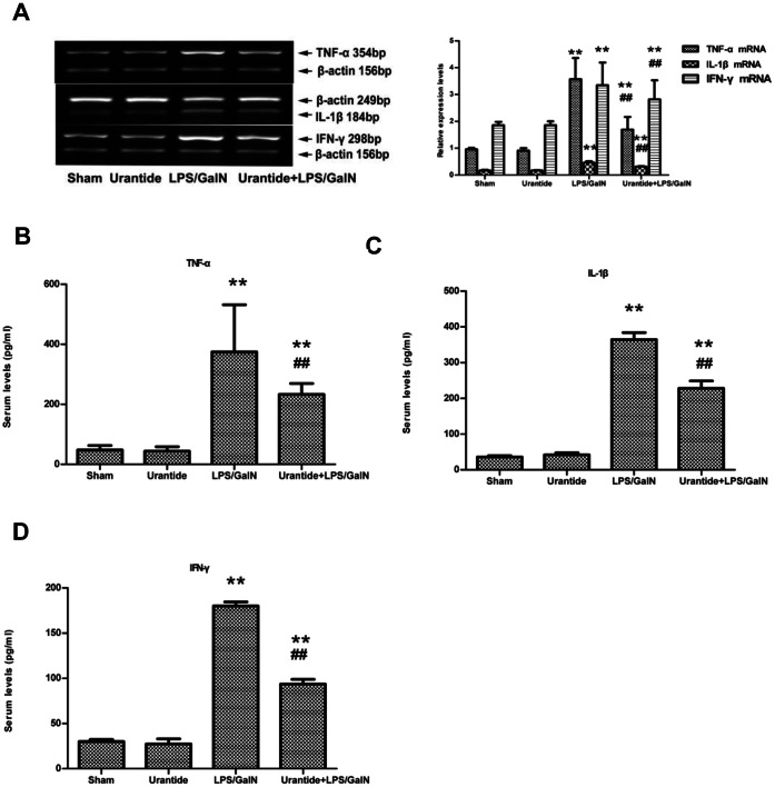 Effects of urantide on levels of pro-inflammatory cytokines in liver and serum. (A) TNF-α, IL-1β and IFN-γ mRNA expression in liver; Left panel shows a representative ethidium bromide-stained gel of RT-PCR products. Relative expression levels of these cytokines in liver are shown in the right panel after normalization to β-actin. (B) Serum levels of TNF-α; (C) Serum levels of IL-1β; (D) Serum levels of IFN-γ. Bars represent means ± SD (n = 6). * P