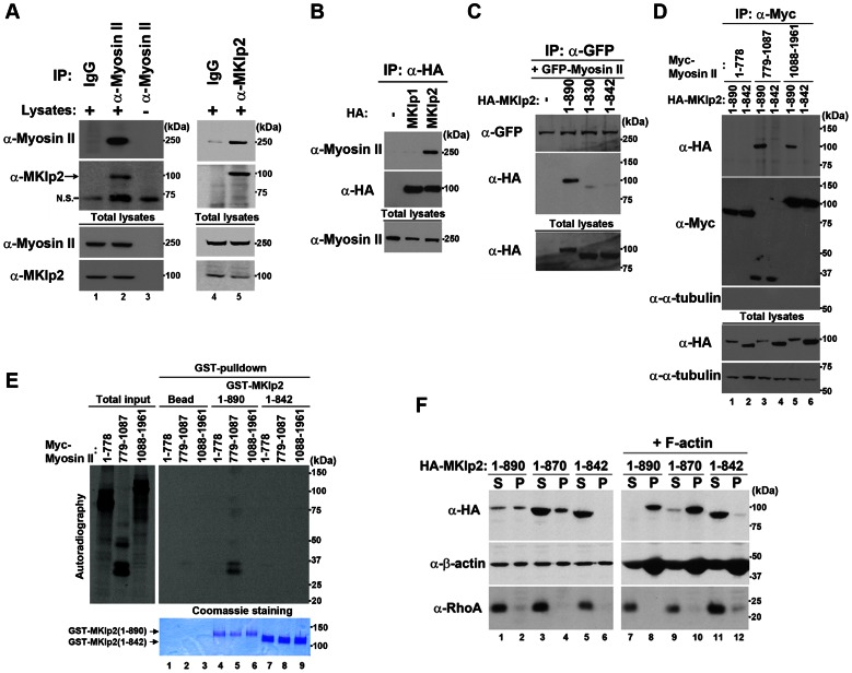 MKlp2 is a novel binding partner of myosin-II in vivo and in vitro . ( A ) Asynchronously growing HeLa cells were harvested and subjected to immunoprecipitation analysis using antibodies for pre-immune control IgG (lanes 1, 4), myosin-II (lanes 2, 3), and MKlp2 with (lane 5) or without (lane 3) HeLa cell lysates. Note that the 100 kDa band is specific for MKlp2 (lane 2) and not caused by α-Myosin-II antibodies used for immunoprecipitation as it is not detected in lane 3. N.S. indicates non-specific. ( B – D ) Asynchronously growing HeLa cells were transfected with the indicated expression plasmids, and 24 h after transfection, HeLa cell lysates expressing the indicated MKlp2 or myosin-II proteins were subjected to immunoprecipitation with the indicated antibodies. ( E ) Autoradiography of in vitro -translated Myc-Myosin-II precipitates with the indicated GST-MKlp2 proteins using GST-pulldown analysis (bottom, visualized with Coomassie Blue staining). Overall, 10% of the input for total in vitro -translated product is shown. ( F ) F-actin binding assay. Asynchronously growing HeLa cells were transfected with the indicated expression plasmids, and 24 h after transfection, HeLa cell lysates expressing the indicated HA-MKlp2 proteins were supplemented without (lanes 1-6) or with in vitro -polymerized recombinant F-actin (lanes 7-12) and subjected to ultracentrifugation. Supernatant (S) and pellet (P) fractions were subjected to immunoblot analysis.