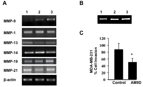 Effect of AM9D treatment on metalloproteinase (MMP) expression in MDA-MB-231 cells . ( A ) Expression levels of MMP9 , MMP1 , MMP13 , MMP14 , MMP19 , and MMP21 , and BACT (ß-actin) mRNA in MDA-MB-231-transfected cells. MDA-MB-231 cells were transfected with Oregon Green 488-labeled DNAzymes, control DNAzyme or mock transfection reagents as described in Materials and methods. Positively transfected cells were identified by flow cytometry. Total RNA was isolated and MMP9 , MMP1 , MMP13 , MMP14 , MMP19 and MMP21 , and BACT (ß-actin) mRNA were amplified by reverse-transcription (RT)-PCR and the PCR products were subjected to agarose gel and visualized by ethidium bromide staining. Lane 1, AM9D; lane 2, control DNAzyme; lane 3, cells treated with DOTAP (N-[1-(2,3-Dioleoyloxy)]-N,N,N-trimethylammonium propane methylsulfate) transfection reagent only. ( B ) Gelatin zymography of culture media from transfected MDA-MB-231 cells. The cultured media from MDA-MB-231 cells transfected with AM9D (lane 1), control DNAzyme (lane 2), or treated with DOTAP alone (lane 3) were separated on 8% SDS polyacrylamide gel containing 1 mg/ml gelatin. ( C ) Histogram showing the percentage of carcinoma cells invading the ECMatrix™ matrigel matrix after treatment with AM9D compared to cells treated with control DNAzyme. Cells were transfected with Oregon Green 488 labeled-DNAzymes, sorted and cultured in a matrigel matrix invasion chamber as described in Materials and methods. * P