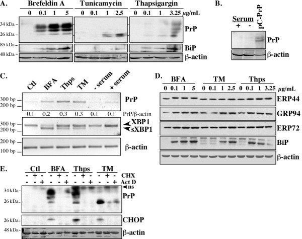 ER stress transcriptionally increases PrP levels in MCF-7 cells . One representative Western blot from at least three independent experiments is shown in A-B . (A) Western blots of PrP with the 3F4 antibody, BiP, and β-actin in protein extracts from MCF-7 cells treated 18 hrs with increasing concentrations of Brefeldin A, Tunicamycin, or Thapsigargin. (B) Western blot of PrP (3F4) and β-actin in protein extracts from MCF-7 cells incubated for 18 hrs in the absence or presence of serum or transfected with pCep4β-PrP (pC-PrP). (C) PrP, XBP1, sXBP1 and β-actin RT-PCR cDNA amplicons from cells treated for 6 hrs. The ratio of PrP over β-actin was calculated from three independent experiments. ( D ) Western blot of various ER stress-regulated proteins in MCF-7 cells treated 18 hrs with BFA, TM or Thps. (E) Western blot of PrP with the 3F4 PrP, CHOP and β-actin antibodies in protein extracts from MCF-7 cells treated 18 hrs with DMSO (Ctl) or ER stressors in the presence or in absence of cycloheximide (CHX) or actinomycin D (Act D). The immunoreactive band at 37 kDa was not consistently detected with the anti-PrP 3F4 antibody suggesting a non-specific band (ns).
