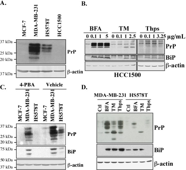 ER stress increases PrP levels in MDA-MB-231, HS578T and HCC1500 cell lines . Western blot of ( A) PrP in protein extracts of MCF-7, MDA-MB-231, HS578T and HCC1500 cell lines, ( B) PrP and BiP in protein extracts from HCC1500 cells treated with BFA, TM or Thps, ( C ) PrP and BiP in protein extracts from MCF-7, MDA-MB-231 and HS578T cell lines treated with 4-PBA or vehicle, ( D ) PrP and BiP in protein extracts of MDA-MB-231 and HS578T cell lines treated with BFA, TM and Thps. β-actin was probed as a loading control.