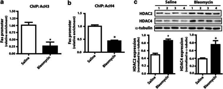 Fibroblasts from bleomycin-injured mice are associated with decreased histone acetylation. ChIP using antibodies against ( a ) acetylated H3 ( n =6 for saline, n =5 for bleomycin) and ( b ) acetylated H4 ( n =6 for saline, n =4 for bleomycin) was performed in fibroblasts from saline- and bleomycin-treated mice. Relative enrichment of the Fas promoter, normalized to saline control, was assayed by real-time PCR from <t>immunoprecipitated</t> <t>DNA.</t> ( c ) Expression of HDAC2 and HDAC4 were assayed by immunoblot in fibroblasts from bleomycin- and saline-treated mice, with mean densitometry values shown ( n =4). * P