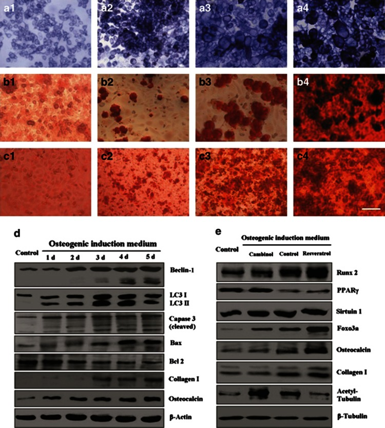 Induced osteogenic differentiation of NCI-H446 cells. After cultured in osteogenic induction medium, the cancer cells changed into bigger multiform osteoblast-like cells. The osteoblast-like cancer cells showed strong activity of alkaline phosphatase ( a1 , control group; a2 , inducing for 3 days; a3 , inducing for 1 week; and a4 , inducing for 2 weeks). The Alizarin Red S staining showed the mineralized bone nodules on the surface of the osteocyte-like cancer cells ( b1 , control group; b2 , inducing for 1 week; b3 , inducing for 2 weeks; and b4 , inducing for 3 weeks). The inhibitor of Sirt1/2, cambinol, could inhibit osteogenic differentiation, however, the agonist for Sirt1, resveratrol, could promote osteogenic differentiation ( c1 , cultured in DMEM medium containing 10% FBS for 1 week; c2 , cultured in osteogenic indution medium containing 100 μ M cambinol for 2 weeks; c3 , cultured in osteogenic indution medium for 2 weeks; and c4 , cultured in osteogenic indution medium containing 100 μ M resveratrol for 2 weeks). Western blotting showed that after inducing differentiation, the levels of autophagy-related proteins (Atg7 and Beclin), were increased, and these proteins were cleaved dynamicly. LC3-I was processed into LC3-II as the indicator of autophagy, in parallel to changing levels of the apoptosis markers (caspase-3, Bax, and Bcl-2). Meanwile, the bone matrix proteins (collagen-I and osteocalcin) were increased gradually ( d ). During the differentiation process, the osteogenic regulatory proteins (Runx2 and Foxo3a) were upregulated, whereas the adipogenic regulatory protein PPAR γ was downregulated. Cambinol could inhibit expressions of the osteogenic regulatory proteins, and resveratrol could promote expressions of these proteins. ( e ) The expression of Sirtuin1 was changed gently; however, the activity of Sirtuin1/2 showed changing obviously by detection of the actylated tubulin- α . Scale bar, 50 μ m