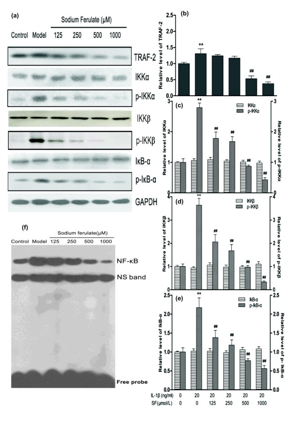 Effects of sodium ferulate on the IKK/NF-κB signaling pathway of rat osteoarthritis chondrocytes . Effects of sodium ferulate (SF) on the TNF/TNF receptor (TNFR)-mediated IKK/NF-κB signaling pathway of rat osteoarthritis (OA) chondrocytes induced by IL-1β. (a) Effects of SF on protein expression of TNF receptor-associated factor 2 (TRAF-2), inhibitor of NF-κB kinase (IKK) subunit alpha (IKKα), IKK subunit beta (IKKβ), NF-κB light polypeptide gene enhancer in B-cell inhibitor, alpha (IκBα), phosphorylation of IKKα (p-IKKα), phosphorylation of IKKβ (p-IKKβ), phosphorylation of IκBα (p-IκBα) and glyceraldehyde-3-phosphate dehydrogenase (GAPDH) in rat OA chondrocytes. Chondrocytes were incubated with SF alone for 24 hours, and then co-treated with IL-1β and SF for 48 hours. Expressions of proteins determined by western blotting. (b, c, d, e) Relative level of TRAF-2, IKKα, IKKβ, IκBα, p-IKKα, p-IKKβ and p-IκBα normalized to GAPDH and compared with normal control, quantitatively analyzed by Kodak Digital Science 1D software (Eastman Kodak, Rochester, NY, USA) and expressed as mean optical density. Values represent mean ± standard error of the mean of three different simples. ** P