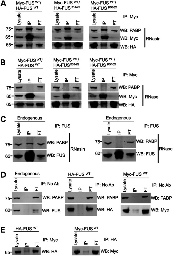 FUS forms a complex with itself, PABP and RNA. ( A ) Co-immunoprecipitation of HA-FUS, Myc-FUS and PABP from HEK293T cells. Immunoprecipitation with a Myc (mouse anti-Myc, CST) antibody pulled down PABP (mouse anti-PABP, Sigma) along with anti-HA-FUS (rabbit HA, CST). RNasin was added to block all RNase activity. ( B ) The interaction between HA-FUS and Myc-FUS was not altered by the addition of RNase, while the co-immunoprecipitation of PABP was completely abolished. ( C ) Immunoprecipitation of FUS (mouse anti-FUS, Santa Cruz) from untransfected cells shows that endogenous FUS (rabbit anti-FUS, Novus Biologicals) also interacts with PABP (mouse anti-PABP, Sigma) and treatment with RNase shows that this interaction is also dependent on RNA. ( D ) Mock immunoprecipitation experiments with either untransfected cells or a single transfection of either HA-FUS WT or Myc-FUS WT with no antibody showed that neither endogenous nor tagged FUS binds to the beads. ( E ) Immunoprecipitation of single transfections with an antibody to the wrong tag showed that a Myc antibody does not pull down HA-FUS and a HA antibody does not precipitate Myc-FUS. FT indicates flow-through of proteins that did not bind to the beads.