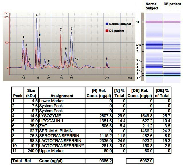Data from <t>2100</t> <t>Bioanalyzer</t> analysis.Upper left: Electropherograms from a representative normal subject (blue line) and a dry eye (DE) patient (red line) are here aligned and overlapped. Recognized peaks of interest are numbered 1 through 11. Upper right: The virtual gel images related to both samples are here compared showing different intensity of corresponding bands between normal subject and DE patient. Bands are here also numbered 1 through 11. Table at the bottom summarizes for each peak the following parameters: recognized molecular weight in kDa, name of the protein assigned on the basis of the validation process [ 13 ], concentration of each protein expressed in ng/microliter, percentage of each protein versus total protein content for both (N) normal subject and (DE) patient. The last line of this table reports total protein concentration expressed in ng/microliter