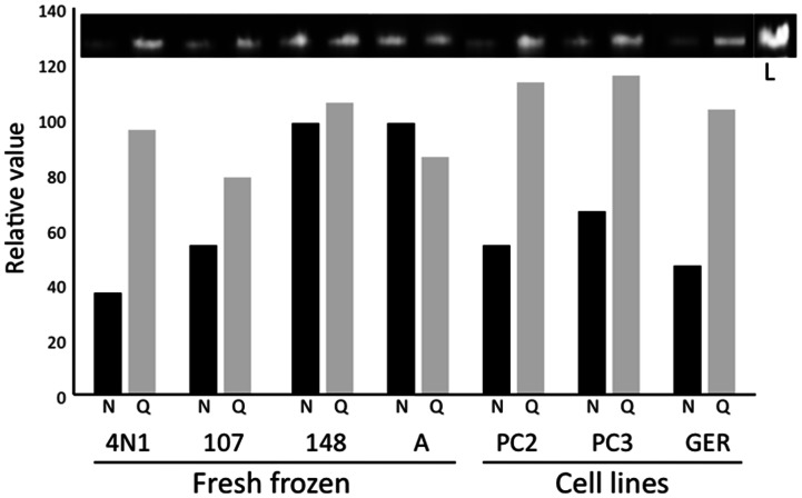 Significant discrepancies in <t>DNA</t> quantification by NanoDrop and <t>Qubit.</t> A total of 100 ng of DNA based on NanoDrop (N, black bars) or Qubit (Q, grey bars) measurements was analyzed by electrophoresis on 0.8% agarose gel. Sample ID is indicated at the bottom. Lane L contains 200 ng of DNA as the reference for normalization. Densitometric analysis (bar chart) was performed by ImageJ software [20] . It is clear from the electrophoretic bands and their densitometric charts that NanoDrop overestimates DNA concentration.