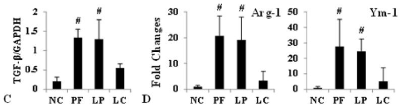 Effect of LC on Lactate-4.25% dialysate-induced overexpression of CD206, TGF-β, Arg-1 and Ym-1. Values were expressed as the mean ± SD. ( A ) The overexpression of CD206 and TGF-β induced by Lactate-4.25% dialysate was evidently downregulated by LC treatment measured by Western blotting; ( B ) The relative protein level of CD206 normalized by GAPDH; ( C ) The relative protein level of TGF-β normalized by GAPDH; ( D ) The mRNA level of Arg-1 and Ym-1 were depressed by LC treatment. # p