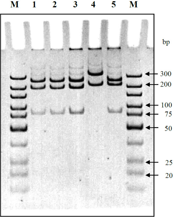Electrophoretic analysis of partial pep A gene (596 bp) of B. pseudomallei digested with Stu I and Hinc II restriction analysis. (12% polyacrylamide gel, 1X TBE buffer, 8 V/cm, 130 min); Lane M- <t>O'GeneRuler™</t> ultra low range <t>DNA</t> ladder; Lane 1- B. pseudomallei NCTC 13178; Lane 2- B. pseudomallei ATCC 23343; Lane 3- Type I; Lane 4- Type II; Lane 5- Type III.