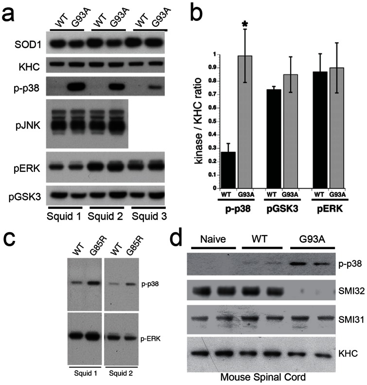 Activation of p38 MAPK by pathogenic SOD1 in axoplasm and mouse spinal cord. (a) Immunoblots with phosphoantibodies show activation of p38 (p-p38) in axoplasms perfused with G93A-SOD1 (G93A), compared to WT-SOD1 (WT). No changes were found in activities of GSK3 (p-GSK3), JNK (p-JNK) or ERK (p-ERK) with perfusion of SOD1. An SOD1 antibody confirmed that similar levels of WT-SOD1 and G93A-SOD1 were perfused, and kinesin-1 (KHC) antibodies serve as a loading control for axoplasmic protein. Representative results from three independent experiments (Squids 1–3) are shown. (b) Quantitation of blots reveals a 3–4 fold increase in p-p38 with G93A SOD1, compared to WT-SOD1 ( n = 8; p≤0.05 (#) by a t-test). No significant differences were found in levels of activated GSK3 ( n = 3) or ERK ( n = 3) (c) Increased activation of p38, but not ERK was also seen in axoplasms perfused with G85R-SOD1 (G85R) polypeptides. (d) Phosphorylation of both neurofilaments (NF) and p38 MAPK was analyzed in spinal cords of age-matched (50 days old) non-transgenic (Naïve), human WT-SOD1 (WT) transgenic and human G93A-SOD1 (G93A) transgenic mice using phosphorylation sensitive antibodies. Kinesin heavy chain (KHC) blots show similar levels of protein loading. SMI32 antibodies recognize a dephosphorylated epitope in NFH that can be phosphorylated by MAPKs, whereas SMI31 recognizes an epitope not affected by phosphorylation with MAPKs [34] . SMI31 immunoreactivity showed similar levels in all mice and serves as a second loading control. In contrast, SMI32 reactivity is reduced in G93A-SOD1 mice, but not naïve and WT-SOD1 mice, suggesting increased phosphorylation of NFs by MAPKs in FALS. Accordingly, p38 activity (p-p38) was increased in spinal cord of G93A-SOD1 mice, with a slight activation in WT-SOD1 mice.