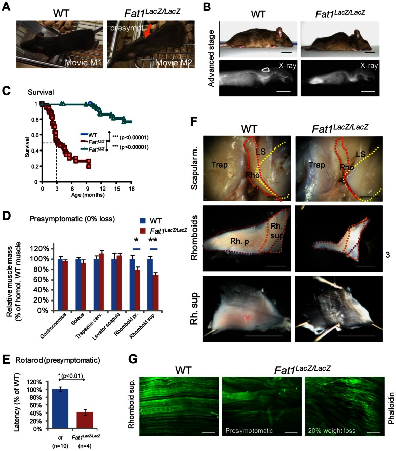Presymptomatic adult Fat1 mutant mice show selective defects in scapular muscles. ( A ) Adult Fat1 LacZ/LacZ mice show visible scapular winging (orange arrow) at stages prior to detectable weight loss (defined as presymptomatic). Pictures (extracted from movies) show a posture in which the mice challenge their shoulder girdle muscles by extending their head as far rostral as possible. At 7 weeks, wasting of the rhomboid muscles can already be detected in presymptomatic Fat1 LacZ/LacZ mice as they move on a cage grid. Note the large gap (orange arrow) between scapulas (where rhomboids normally maintain scapulas attached to the dorsal spine), not visible in the corresponding position in the wild type littermate. ( B ) At advanced symptomatic stages (30% weight loss, anesthetized mice), there is marked curvature of the spine in the upper back and shoulder area, also visible through X-ray post-mortem imaging. ( C ) Kaplan-Meier plot showing survival of wild type, Fat1 LacZ/+ , and Fat1 LacZ/LacZ mice. Most Fat1 LacZ/LacZ mice die between 2 and 4 months, with a median survival of 3 months, while a small group survives beyond 6 months. ( D ) Masses of dissected muscles of Fat1 LacZ/LacZ mice at presymptomatic disease stage (0% weight loss, n = 3) relative to age-matched controls (n = 6; average wild type weight defined as 100%). ( E ) Motor performance defects in presymptomatic adult Fat1 LacZ/LacZ mice. Rotarod analysis shows that the latency to fall off from the rod was significantly shorter in presymptomatic adult Fat1 LacZ/LacZ . In this set of experiments, additional Fat1 LacZ/LacZ mice that were symptomatic at the stage when training started had died by the time the test was performed and are therefore not included in the graph. ( F ) Scapular muscle dissection in adult wild type and Fat1 LacZ/LacZ mice reveals a pronounced reduction in volume and thickness of the rhomboid superficialis (Rh. Sup.) and rhomboid profundus (Rb. P.). This likely underlies the scapular winging phenotype. In the top pictures, the trapezius cervicalis (Trap) has been removed on the right side of each mouse to uncover the other scapular muscles ( rhomboids : Rho; levator scapula : LS). Yellow dotted lines indicate the extent of the scapula, red and orange dotted lines that of the two rhomboid muscles. The intermediate magnification highlights the respective shapes of the rhomboid superficialis (orange dotted line) and rhomboid profundus (purple dotted line). ( G ) Phalloidin staining of flat-mounted rhomboid superficialis muscles of wild type and Fat1 LacZ/LacZ mice at presymptomatic (middle panel) or advanced disease (20% weight loss; bottom panel) stages shows that early defects of myofiber orientation precede reduction of myofibre diameter. Scale bars: ( F ) 2 mm; ( G ) 300 µm.