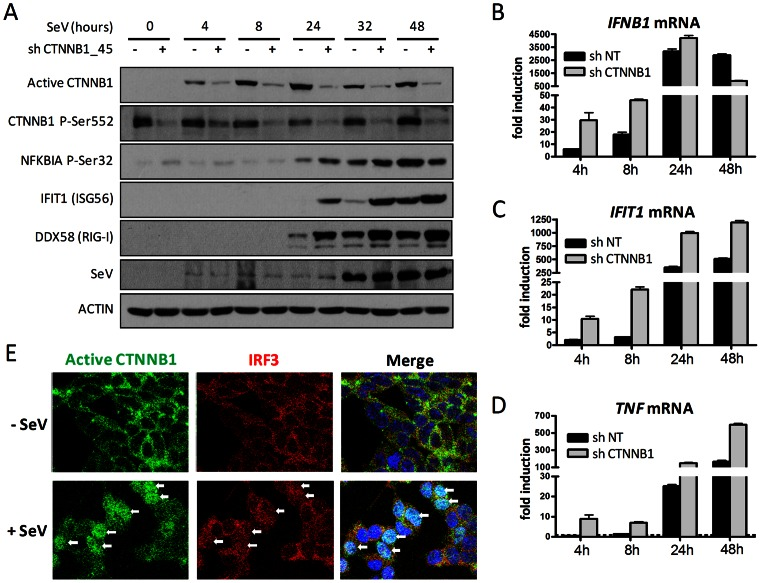 SeV infection induces CTNNB1 stabilization and nuclear translocation. (A) Immunoblot analysis of dephosphorylated active CTNNB1 at Ser37/Thr41, CTNNB1 phosphorylated at Ser552, NFKBIA (IκBα) phosphorylated at Ser32, IFIT1, DDX58 and SeV protein HN of HEK <t>293T</t> transduced with lentivirus-expressing <t>shRNA</t> 45 targeting CTNNB1 and shRNA NT (control) for four days and subjected to SeV infection for 0, 4, 8, 24, 32 or 48 hours. (B–D) Fold induction of IFNB1 (B), IFIT1 (C) and TNF (D) mRNA levels in HEK 293T cells treated as described in (A). qRT-PCR determination represents the average mRNA RQ normalized versus ACTIN and HPRT1 mRNA. (E) Confocal analysis of HEK 293T cells using Hoechst, anti-CTNNB1 active form and anti-IRF3 antibodies without virus infection or following 16 hours infection with SeV. Nuclear detection of IRF3 and CTNNB1 is identified by white arrows in infected cells.