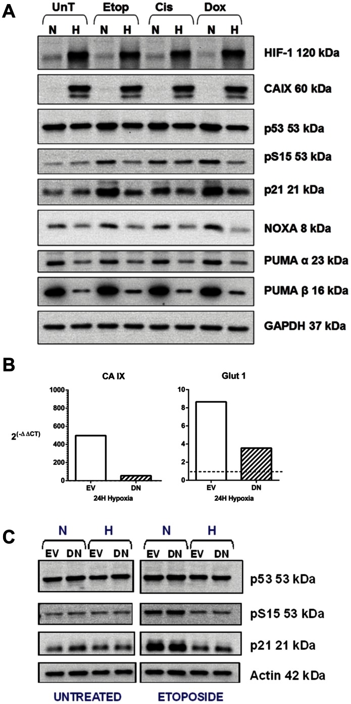 Hypoxia reduces DNA damage-induced p53 phosphorylation at serine 15, irrespective of HIF-1 inactivation. A, 24 hours after exposure to 1 µM etoposide, 6 µM cisplatin or 0.14 µM doxorubicin for 1 hour in normoxia (N) or hypoxia (H) cells were harvested and western blotting performed for p53, p53 phosphorylated at serine 15, indicative of DNA damage, and the downstream targets of p53, p21, PUMA and NOXA. Treated samples were compared to untreated controls (UnT). GAPDH was a loading control. Data are representative of 3 independent experiments. A reduction of p53 phosphorylation at serine 15 was seen in hypoxia compared to normoxia following exposure to the DNA damaging agents. B, U2OS cells were transiently transfected with the pEF-IRES-P-HIF-no-TAD-EGFP vector (Dominant-negative HIF) (DN) or the empty vector control (EV). After a 24 hour pre-treatment incubation period in either normoxia (N) or hypoxia (H) cells were exposed to 1 µM etoposide and incubated for a further 24 hours before whole cell extracts harvested and western blotting performed for p53, p53 phosphorylated at serine 15, indicative of DNA damage, and p53 transcriptional target p21. Etoposide treated samples were compared to untreated controls. Actin was a loading control. Data are representative of 2 independent experiments. C, Simultaneously transfected cells were maintained in normoxia or hypoxia and harvested at 24 hours hypoxia, the time of treatment. RNA was extracted and qPCR performed for CA IX and Glut-1 expression. Graphs show 2 (−ΔΔCT) where CT is the Cross Threshold and represent the change in mRNA expression in hypoxia relative to normoxia, where 1 would be equivalent expression in normoxia and hypoxia and greater than 1 represents an increase in hypoxia relative to normoxia. Data show mRNA expression from cells lysed in (B) and are representative of 2 independent experiments. Reduced phosphorylation of p53 at serine 15 and p21 protein levels were seen in hypoxia following etoposide treatm