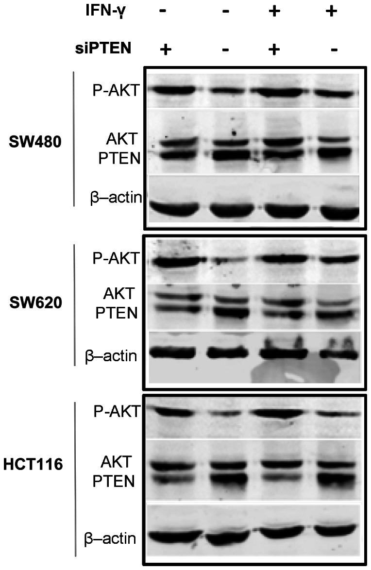 PTEN knockdown increased Akt activation both in the presence and absence of IFN-γ. The protein expression level of PTEN, Akt and phospho-Akt Ser473 were determined by Western blotting. β-actin was used to verify equal loading. Representative images are selected from performed experiments repeated in triplicates.