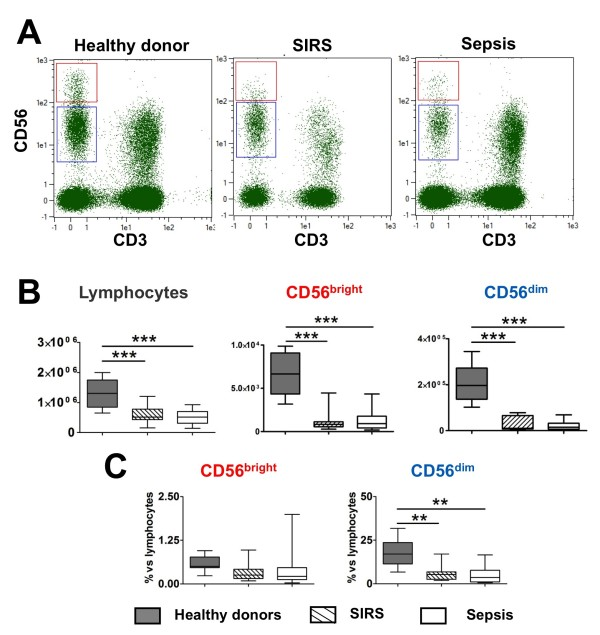 Analysis of NK cells CD56 bright and CD56 dim subsets in sepsis and systemic inflammatory response syndrome (SIRS) patients . ( A ) Representative chart of analysis of natural killer (NK) cells in whole blood by flow cytometry. ( B ) Cell counts for total lymphocytes and NK cell subsets (CD56 bright and CD56 dim ) in healthy volunteers, SIRS, and sepsis patients. ( C ) Percent of NK subsets among lymphocytes in healthy volunteers, SIRS, and sepsis patients. Data are shown as median and interquartile range. ** P