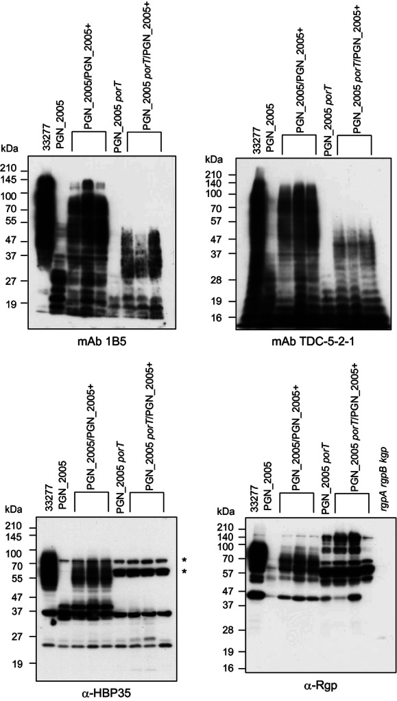 Immunoblot analyses of various Porphyromonas gingivalis strains. Immunoblot analyses of cell lysates of various P. gingivalis strains were performed with mAb 1B5, mAb TDC-5-2-1, anti-HBP35, or anti-Rgp. Three sets of PGN_2005/PGN_2005+ or PGN_2005 porT/PGN_2005+ strains were obtained from each single clone. The asterisks indicate nonspecific cross-reactive bands.