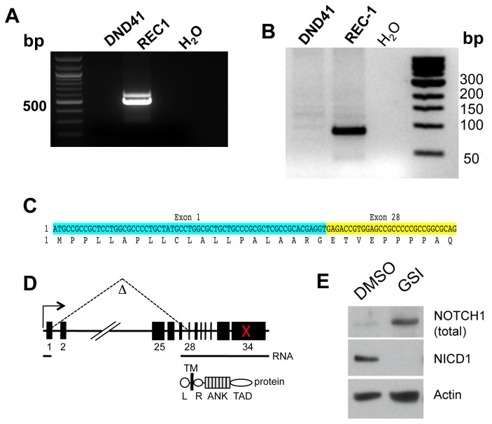 Identification of an activating deletion in NOTCH1 in REC-1 mantle cell lymphoma cells. A) 5'-RACE products synthesized from input RNA from REC-1 MCL cells and DND-41 T-ALL cells; the latter have intact NOTCH1 alleles. B) Results of PCR of genomic REC-1 and DND-41 cell DNA with a NOTCH1 exon 1/exon 28-specific primer pair. C) Sequence of the 5'-RACE product in A and the genomic PCR product in B. Both showed an in-frame fusion of exon 1 and exon 28 NOTCH1 coding sequences. D) Cartoon depicting the intragenic NOTCH1 deletion in REC-1 cells and its consequences at the level of NOTCH1 RNA and protein. The red X denotes the position of a frame-shift mutation in exon 34 of NOTCH1 . L, leader peptide; TM, transmembrane domain; R, RAM domain; ANK, ankyrin repeat domain; TAD, transcriptional activation domain. E) Western blot showing the effect of treatment of REC-1 cells with the gamma-secretase inhibitor (GSI) compound E for 72 hours versus DMSO control. GSI depletes NICD1 (detected with the NICD1-specific V1744 antibody) and leads to the accumulation of a polypeptide of the size predicted by virtual translation of the aberrant NOTCH1 mRNA. Total NOTCH1 was detected with a polyclonal antibody raised against the NOTCH1 TAD.