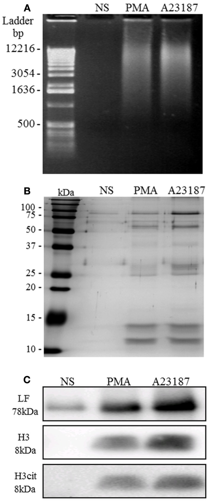 NETs are recovered after AluI treatment of activated PMN . Unstimulated PMN and PMA- or A23187-stimulated PMN were treated with the restriction enzyme Alu-I. (A) NET samples migrated on agarose gel were stained with ethidium bromide: dsDNA fragments were revealed as a smearing pattern along the gel. (B) Visualization of NET protein content by silver staining. Few proteins were observed in the untreated sample, whereas numerous proteins were observed in PMA- and A23187-NET samples, with similar profiles. (C) Identification of three specific NET proteins (LF, H3, and cit-H3) by immunoblotting. Cit-H3 is a signature of netosis. These experiments were repeated at least six times with PMN from different healthy controls.