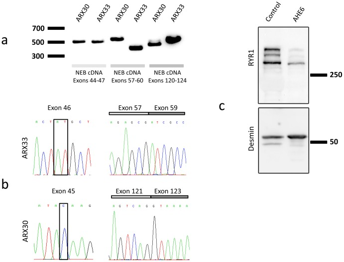 Impact of the NEB/RYR1 mutations. (A) Normal sized cDNA amplicons for exons 44 to 47 from patient ARX30 with the heterozygous c.5574C > G nonsense mutation (exon 45) and from patient ARX33 with the heterozygous c.5783_5784delAT deletion (exon 46). The splice mutation c.8160+1G > A (intron 58, ARX33) resulted in a shorter NEB cDNA amplicon (exons 57–60) compared to the control. The splice mutation c.19101+5G > A (intron 122, ARX30) involved a weak cDNA amplicon (exons 120–124) of normal size and a strong amplicon of smaller size. (B) The NEB c.8160+1G > A splice mutation (ARX33) causes a complete skipping of the in-frame exon 58. The c.5783_5784delAT mutation was not seen in the cDNA, indicating mRNA degradation by nonsense-mediated mRNA decay (NMD) of the allele containing this deletion. The NEB cDNA amplicon of patient ARX30 (exons 122–126) did not contain the in-frame exon 122. The c.5574C > G mutation in exon 46 was not seen by cDNA sequencing, suggesting NMD of the allele harboring this nonsense mutation. (C) Western blot of a deltoid muscle extract revealed a strong reduction of the RYR1 protein level in patient AHE6 compared to a healthy age-matched control. Desmin was used for normalization.