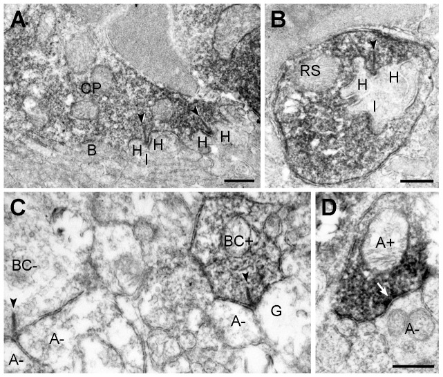 Presynaptic localization of ANO1 in the retina. Electron micrographs taken from vertical ultrathin sections (90 nm in thickness) of the mouse retina processed for ANO1 immunostaining. ( A, B ) Outer plexiform layer. In A , ANO1 immunoreactivity is localized to a cone pedicle (CP). At each ribbon synapse (arrowheads) within the CP, 2 horizontal dendrites (H) and an invaginating dendrite of ON-cone bipolar cell (I) are unlabeled. The basal dendrites of OFF-cone bipolar cells (B) at the CP base are also unlabeled. In B , a rod spherule (RS) shows ANO1 immunoreactivity. Similar to A , the postsynaptic triad comprising 2 horizontal dendrites (H) and an invaginating rod bipolar dendrite (I) do not exhibit ANO1 immunoreactivity. ( C, D ) Inner plexiform layer. In right side of C , a labeled cone bipolar terminal (BC+) establishes a ribbon synapse (arrowhead) onto a postsynaptic dyad composed of an unlabeled ganglion dendrite (G) and an unlabeled amarcrine process (A−). In addition, an unlabeled bipolar terminal (BC−) synapsing onto 2 unlabeled amacirne dendrites (A−) is seen in the left side. In D, a labeled amacrine process (A+) establishes a conventional chemical synapse onto an unlabeled amacrine process (A−). Scale bars, 0.5 µm.