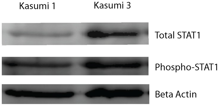 Increased endogenous STAT1 phosphorylation in human Evi1 overexpressed leukemic cell lines. a) Western blot analysis using anti-total-STAT1 antibody. Lane 1 from left shows total STAT1 protein expression level in Kasumi 1 cells. Lane 2 shows total STAT1 protein level in Kasumi 3 cells. Evi1 overexpressed myeloid leukemic cells demonstrate a higher baseline of STAT1 protein, consistent with our mRNA findings. b) Western blot analysis using anti-phospho-STAT1 antibody. Lane 1 from left shows endogenous phosphorylated STAT1 protein expression level in Kasumi 1 cells (human leukemic cell line without Evi1 expression. Lane 2 shows the STAT1 protein level in Kasumi 3 cells. c) Beta actin loading control.