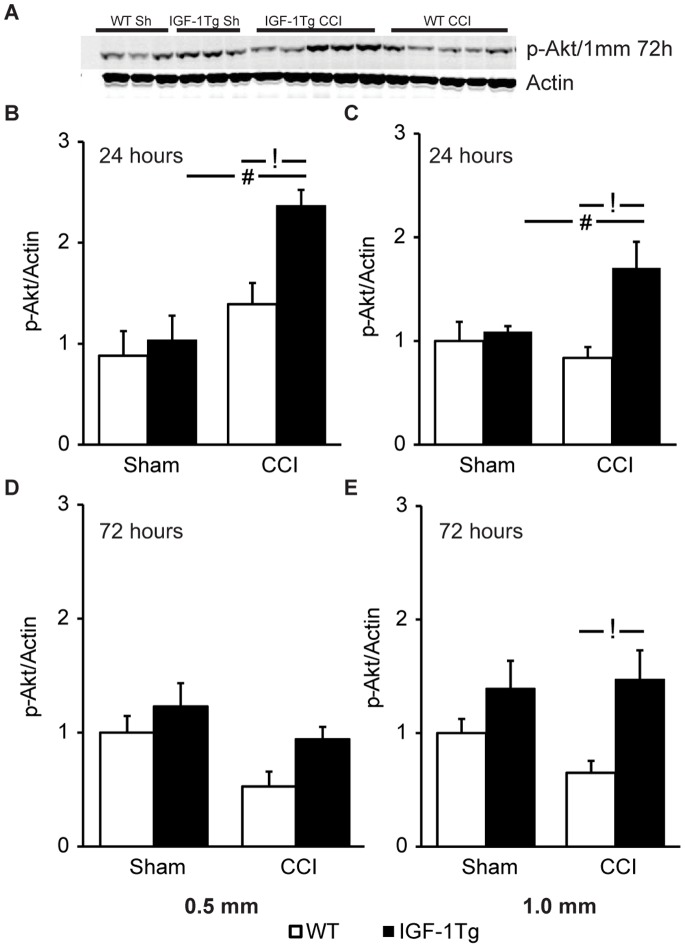 Akt phosphorylation is augmented in IGF-1Tg mice. A) Representative western blot images for ipsilateral hippocampal samples probed with anti-p-Akt and anti-actin antibodies. Blots illustrate expression at 72 h after severe (1.0 mm) controlled cortical impact (CCI) brain injury or sham injury (Sh). Relative expression of hippocampal p-Akt at 24 h ( B,C ) and 72 h ( D,E ) following either 0.5 mm ( B,D ) or 1.0 mm ( C,E ) CCI in wildtype (WT, open bars) and IGF-1 transgenic (IGF-1Tg, closed bars) mice. Optical density from each band was normalised to its respective actin band and then group means were normalised to the mean of WT sham group. Data are represented as mean+SEM. # p
