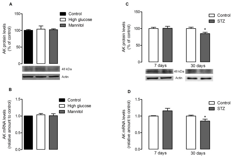 Adenosine kinase levels in cultured retinal cells and diabetic retinas. (A–B) Cells were treated as previously described in Figure 1 . The mean±SEM of 4–6 independent experiments was analyzed with one-way ANOVA and Tukey's multiple comparison test. (C–D) Rats were subjected to an intraperitoneal injection of STZ and maintained for a period of 7 days and 30 days. ( A ) 50 µg of protein content from each sample was loaded into a 7.5% gel, electrophoresed and probed for the presence of AK. Total protein levels were normalized by the loading control (actin), and expressed as percentage of the control group. ( B ) Total RNA was isolated using the RNeasy Mini Kit from Qiagen according to the manufacturer's instructions. Data from the target gene was normalized using the expression of three stable reference genes and the mRNA level ratios calculated using the altered Pfaffl model for normalizations with multiple reference genes. Experiments were carried out in triplicate. ( C ) 50 µg of protein content from each sample was loaded into a 7.5% gel, electrophoresed and probed for the presence of AK. Total protein levels were normalized by the loading control (actin), and expressed as percentage of the control group. The mean±SEM of 3–6 samples for each condition was analyzed with the Student's t-test (diabetic vs control) and F test. * p