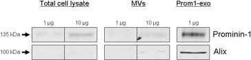 Enrichment of prominin-1 and alix in prom1-exo. Immunoblotting analysis of total cell lysates, microvesicles (MVs), and prom1-exo from FEMX-I cells. 1 and 10 μg of total proteins were loaded per lane for total cell lysates and MVs and 1 μg for prom1-exo, and analyzed as described under Experimental Procedures .