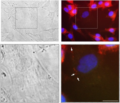 Co - culture of MSC and FEMX-I cells shows uptake of prominin-1 by MSC. MSC and FEMX-I cells were cultured for 24 h at 1:5 ratio. After fixation and permeabilization, expression of prominin-1 was analyzed by immunofluorescence employing phycoerythrin-conjugated AC133 anti-prominin-1 antibody. Since MSC do not express prominin-1, there could be no interference from an endogenous MSC prominin-1 pool. Insets in the upper panels were enlarged in the lower panels. Arrows indicate some areas of prominin-1 positivity inside a MSC. Red, prominin-1; blue, DAPI. Bars, 25 μm.