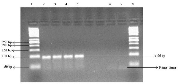 Agarose gel (3%) electrophoresis of SYBR Green real-time PCR products. The gel picture shows the presence of primer-dimers in negative control (Lane 6 and Lane 7) and specific TTV amplified products (96 bp) in Lanes 2, 3, 4 and 5. Lane 1 and Lane 8 contained 50 bp DNA ladder.