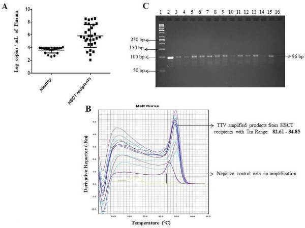TTV DNA in healthy individuals (n=20) and in HSCT recipients (n=30) by SYBR Green assay. A represents the log copies per mL of plasma for each healthy individual and HSCT recipient tested. B shows the melting curves for HSCT recipients and C shows 3% agarose gel picture with 50 bp DNA ladder in Lane 1, Lane 2 contained positive control (plasmid vector containing TTV insert), Lane 3 - Lane 15 shows the presence of TTV specific PCR products (96 bp) from HSCT recipients while Lane 16 contains the negative control.