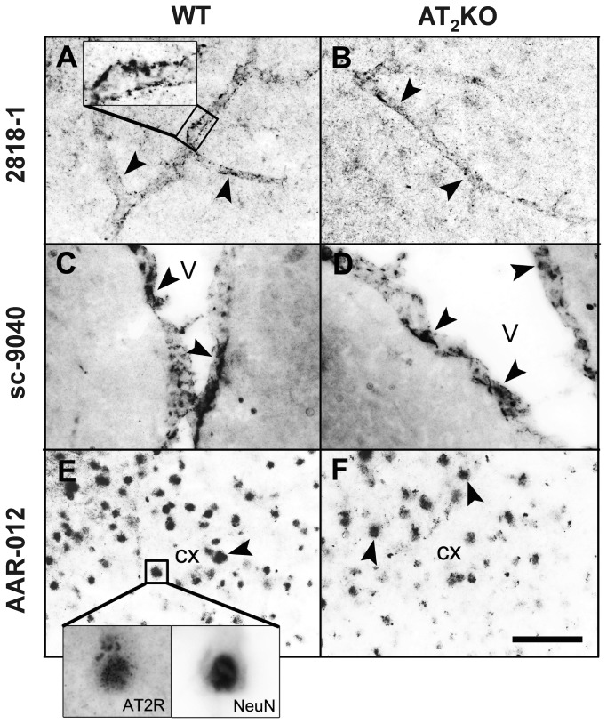 Angiotensin II AT 2 receptor immunocytochemistry in the mouse brain. (A) and (B) Antibody 2818-1 from Epitomics (dilution 1:400). The AT 2 receptor antibody reacts with parenchymal microvessels (indicated with arrowheads in A and B, and in box in panel A) in the cerebral motor cortex from -1.22 mm to Bregma, and the immunocytochemistry is similar in wild-type (WT) (A) and AT 2 knock-out (KO) mice (B). (C) and (D) Antibody sc-9040 from Santa Cruz (dilution 1:2000). The antibody detects ciliated ependymal cells (arrowheads) of the lateral ventricle (V), and the staining is similar in the wild type (C) or knockout mice (D) located at the same coordinates as A and B. (E) and (F): antibody <t>AAR-012</t> from Alomone (dilution 1:3000). In the cerebral motor cortex, the antibody detects cell colocalization with the neuronal marker NeuN (indicated with arrowheads in E and F and in the boxes in panel E). The staining is similar in wild-type (E) and AT 2 receptor knockout (F) mice. Scale bar = 20 µm.