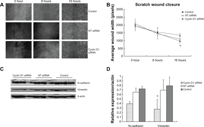 Cell migration and n-cadherin, vimentin expression induced by cyclin D1 silence. Notes: ( A and B ) Wound width of cyclin D1 siRNA-transfected cells was significantly decreased compared to that of control ( t = −3.125, P = 0.004); ( C and D ) Knockdown of cyclin D1 resulted in significantly decreased expression of vimentin protein in spheroid-differentiated cells ( t = 3.748, P = 0.002). N-cadherin expression was not significantly different (Z = −1.083, P = 0.279). Abbreviation: NT-siRNA, nontargeting small interfering RNA.