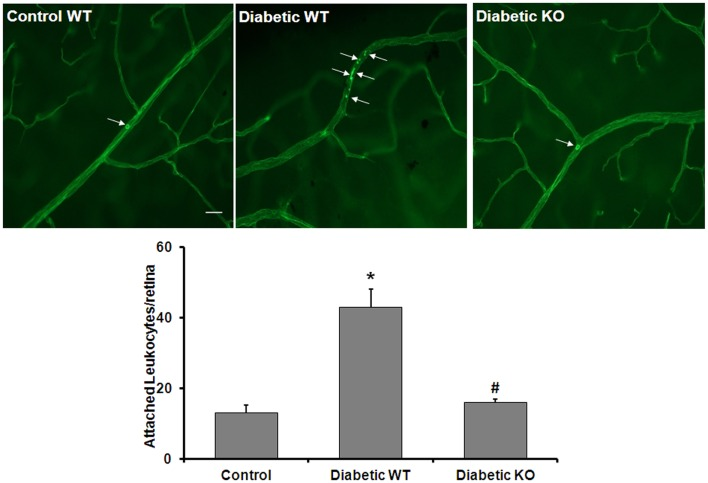 Prevention of diabetes-induced increase in leukocyte adhesion by arginase deletion . Wild type controls, wild type diabetic or arginase AI +/− AII −/− (KO) diabetic mice were perfused through left ventricle with Concanavalin A to label leukocytes attached to the vascular endothelium. The number of attached leukocytes was significantly increased in the wildtype diabetic mice as compared to non-diabetic controls and arginase KO significantly blunted this effect (* p