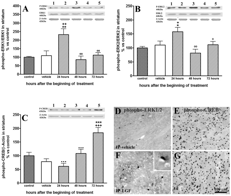 Liver growth factor activated the MAPK/ERK1/2 signalling pathway and elicited the phosphorylation of CREB in the striatum of 6-OHDA-lesioned rats. A single injection of LGF promoted a transient increase in the phosphorylation of ERK1/2, which was observed 24 hours after the administration of the factor (A, B, lined bars). Moreover, 72 hours after LGF treatment, phospho-CREB levels were significantly raised (C, lined bars), as compared with control (C, dotted bar) and vehicle-treated rats (C, white bars). Lane 1: control; lane 2: lesioned striatum of vehicle rats; lane 3: lesioned striatum of 24-hour LGF-treated rats; lane 4: lesioned striatum of 48-hour LGF-treated rats; lane 5: lesioned striatum of 72-hour LGF-treated rats. Results are expressed as percentage of control (naïve striatum of IP-vehicle treated rats at 13 weeks post-lesion), and represent the mean ± SEM of n individual rats. One way ANOVA were performed in A (p = 0.0006; F 4, 28 = 6.791, n = 6–7), B (p = 0.0028; F 4, 29 = 5.178, n = 6–7) and C (p